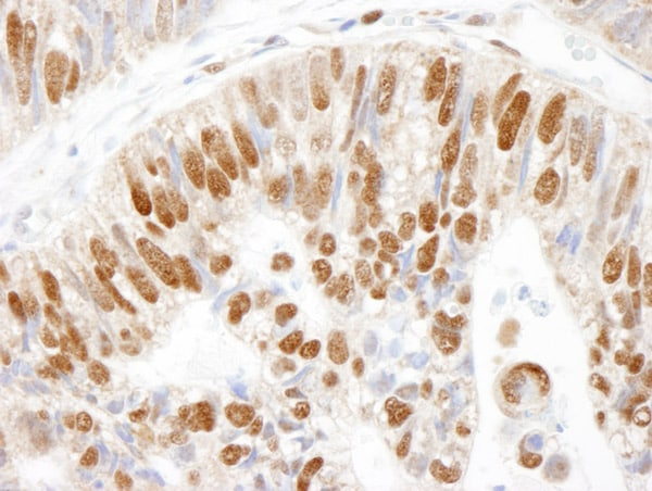 Immunohistochemistry (Formalin/PFA-fixed paraffin-embedded sections) - Anti-MCM3 antibody (ab4460)
