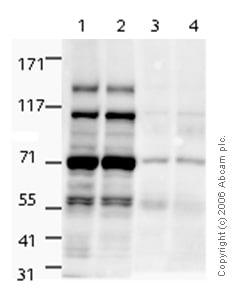 Western blot - Anti-NSD3 antibody (ab4514)