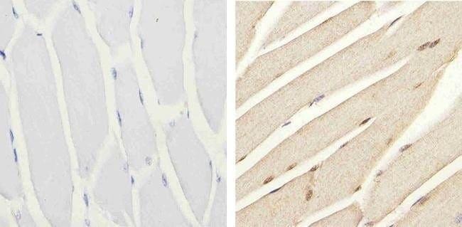 Immunohistochemistry (Formalin/PFA-fixed paraffin-embedded sections) - Anti-IRS1 (phospho S616) antibody (ab4776)
