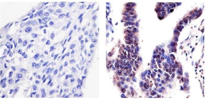 Immunohistochemistry (Formalin/PFA-fixed paraffin-embedded sections) - Anti-PYK2 (phospho Y402) antibody (ab4800)