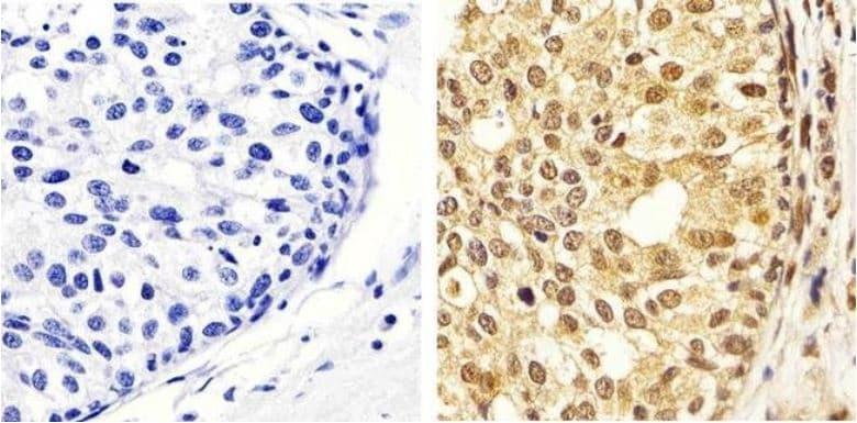 Immunohistochemistry (Formalin/PFA-fixed paraffin-embedded sections) - Anti-Erk1 (pT202/pY204) + Erk2 (pT185/pY187) antibody (ab4819)