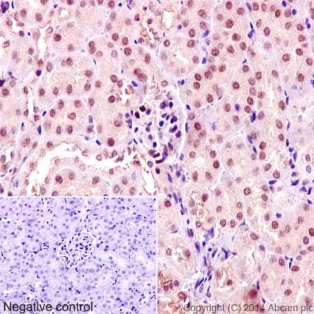 Immunohistochemistry (Formalin/PFA-fixed paraffin-embedded sections) - Anti-TRAF6 antibody [EP592Y] (ab40675)