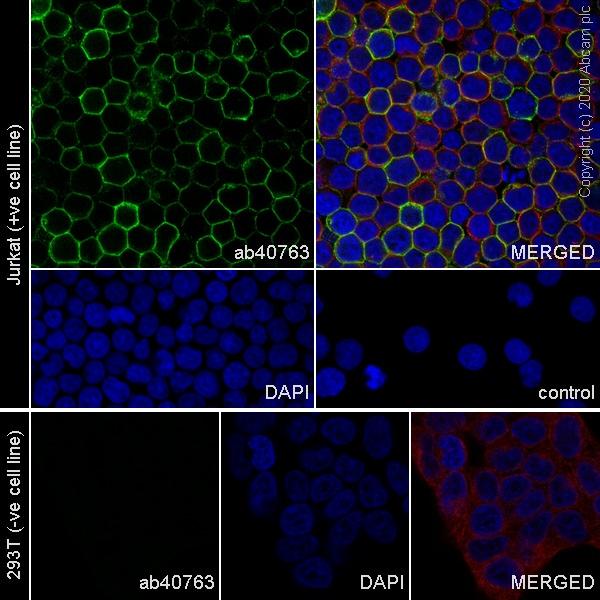 Immunocytochemistry - Anti-CD45 antibody [EP322Y] (ab40763)