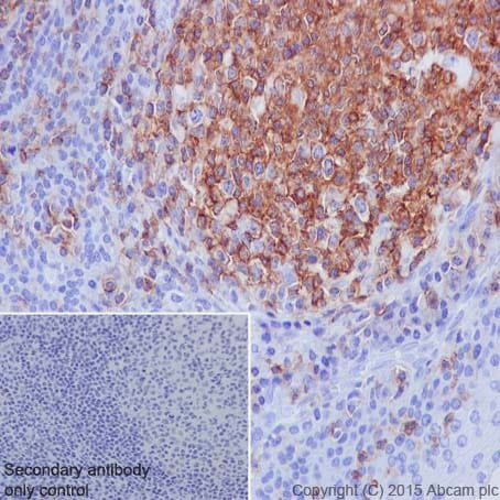 Immunohistochemistry (Formalin/PFA-fixed paraffin-embedded sections) - Anti-CD45 antibody [EP322Y] (ab40763)