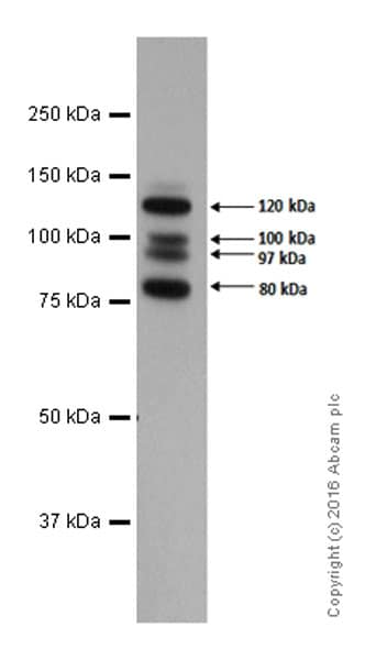 Western blot - Anti-E Cadherin antibody [EP700Y] - Intercellular Junction Marker (ab40772)