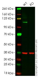 Western blot - Anti-ERK5 antibody [EP791Y] (ab40809)