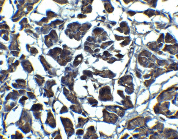 Immunohistochemistry (Formalin/PFA-fixed paraffin-embedded sections) - Anti-IL23 antibody (ab45420)