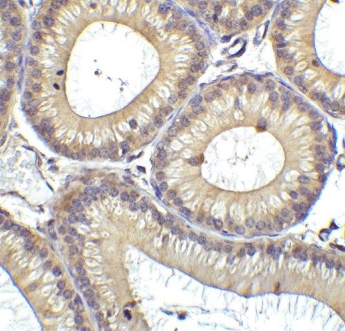 Immunohistochemistry (Formalin/PFA-fixed paraffin-embedded sections) - Anti-RIG-I/DDX58 antibody (ab45428)