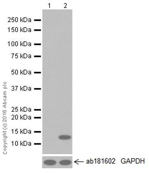 Western blot - Anti-CCL4/MIP-1 beta antibody [EP521Y] (ab45690)