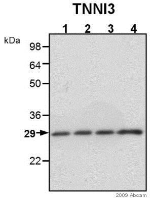 Western blot - Anti-Cardiac Troponin I antibody (ab47003)