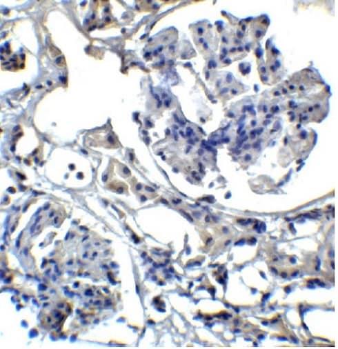 Immunohistochemistry (Formalin/PFA-fixed paraffin-embedded sections) - Anti-TIM 1 antibody (ab47635)