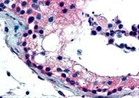 Immunohistochemistry (Formalin/PFA-fixed paraffin-embedded sections) - Anti-FOXE1 antibody (ab5080)