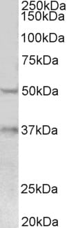 Western blot - Anti-FOXA1 antibody (ab5089)