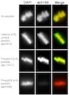 Immunocytochemistry/ Immunofluorescence - Anti-Histone H3 (phospho S28) antibody (ab5169)