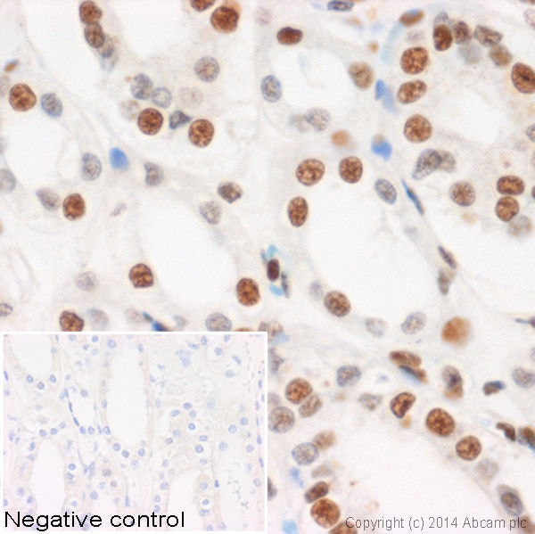 Immunohistochemistry (Formalin/PFA-fixed paraffin-embedded sections) - Anti-Histone H3 (phospho S10) antibody - ChIP Grade (ab5176)