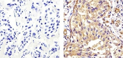 Immunohistochemistry (Formalin/PFA-fixed paraffin-embedded sections) - Anti-EIF2S1 antibody [EIF2a] (ab5369)