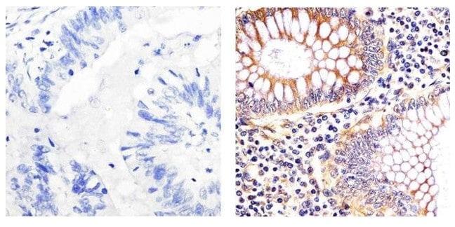 Immunohistochemistry (Formalin/PFA-fixed paraffin-embedded sections) - Anti-EIF2S1 antibody [EIF2a] (ab5369)