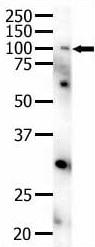 Western blot - Anti-Eph receptor A4/SEK antibody (ab5389)