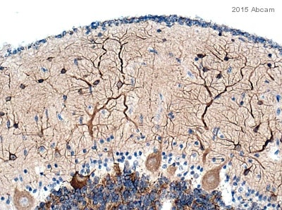 Immunohistochemistry (Formalin/PFA-fixed paraffin-embedded sections) - Anti-MAP2 antibody (ab5392)