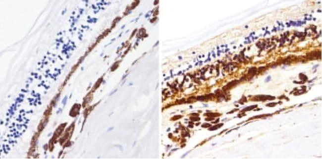 Immunohistochemistry (Formalin/PFA-fixed paraffin-embedded sections) - Anti-Rhodopsin antibody [1D4] (ab5417)
