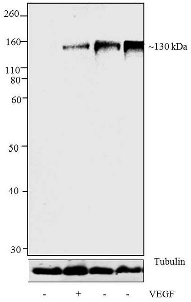 Western blot - Anti-VEGF Receptor 2 (phospho Y1054 + Y1059) antibody (ab5473)