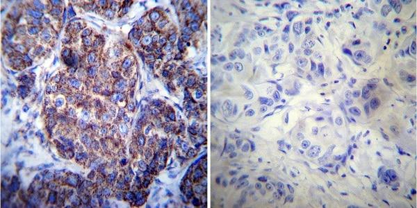 Immunohistochemistry (Formalin/PFA-fixed paraffin-embedded sections) - Anti-Hsp60 antibody [4B9/89] (ab5478)