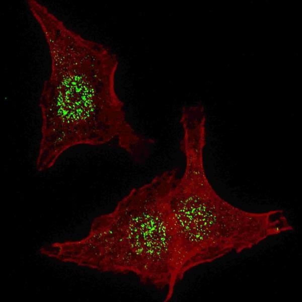Immunocytochemistry/ Immunofluorescence - Anti-FGFR4 antibody (ab5481)