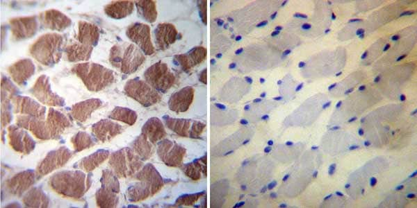 Immunohistochemistry (Formalin/PFA-fixed paraffin-embedded sections) - Anti-Hsp27 antibody (ab5579)