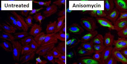 Immunocytochemistry/ Immunofluorescence - Anti-Hsp27 (phospho S15) antibody (ab5581)