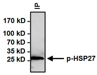 Immunoprecipitation - Anti-Hsp27 (phospho S15) antibody (ab5581)