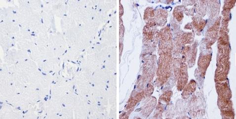 Immunohistochemistry (Formalin/PFA-fixed paraffin-embedded sections) - Anti-nNOS (neuronal) antibody (ab5586)