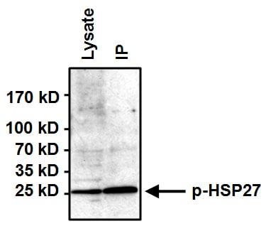 Immunoprecipitation - Anti-Hsp27 (phospho S85) antibody (ab5594)