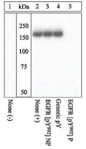 Western blot - Anti-EGFR (phospho Y992) antibody (ab5638)