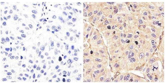 Immunohistochemistry (Formalin/PFA-fixed paraffin-embedded sections) - Anti-EGFR (phospho Y992) antibody (ab5638)