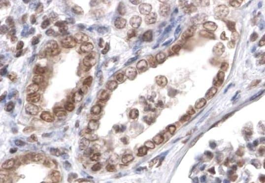 Immunohistochemistry (Formalin/PFA-fixed paraffin-embedded sections) - Anti-PTBP1  antibody (ab5642)