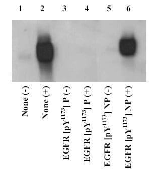 Western blot - Anti-EGFR (phospho Y1173) antibody (ab5652)