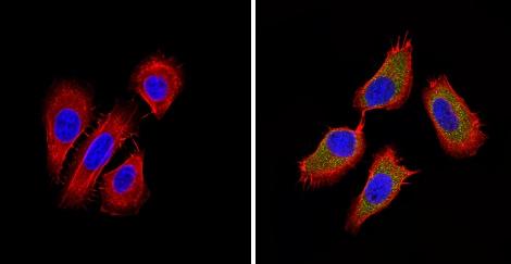 Immunocytochemistry/ Immunofluorescence - Anti-BACE2  antibody (ab5671)