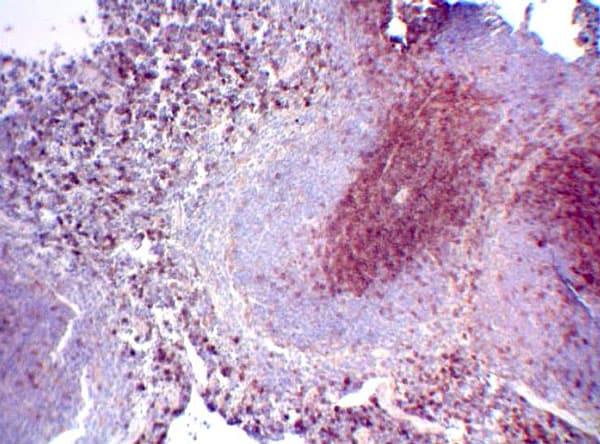 Immunohistochemistry (Formalin/PFA-fixed paraffin-embedded sections) - Anti-CD3 antibody (ab5690)