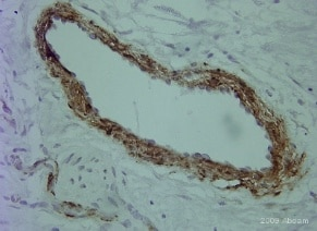 Immunohistochemistry (Formalin/PFA-fixed paraffin-embedded sections) - Anti-alpha smooth muscle Actin antibody (ab5694)