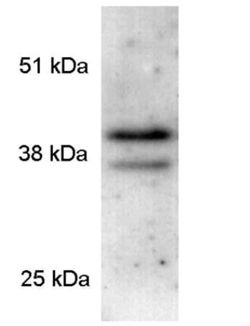 Western blot - Anti-PAR4 antibody (ab5787)