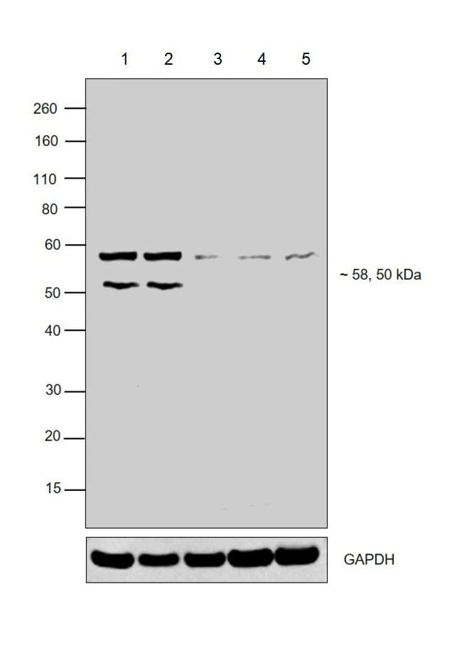 Western blot - Anti-Retinoic Acid Receptor beta antibody (ab5792)