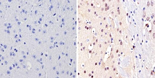 Immunohistochemistry (Formalin/PFA-fixed paraffin-embedded sections) - Anti-NCOR2/SMRT antibody (ab5802)