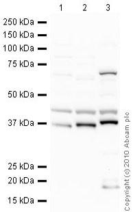 Western blot - Anti-Fibrillarin antibody - Nucleolar Marker (ab5821)