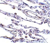 Immunohistochemistry (Formalin/PFA-fixed paraffin-embedded sections) - Anti-CIKS/ACT1 antibody (ab5973)