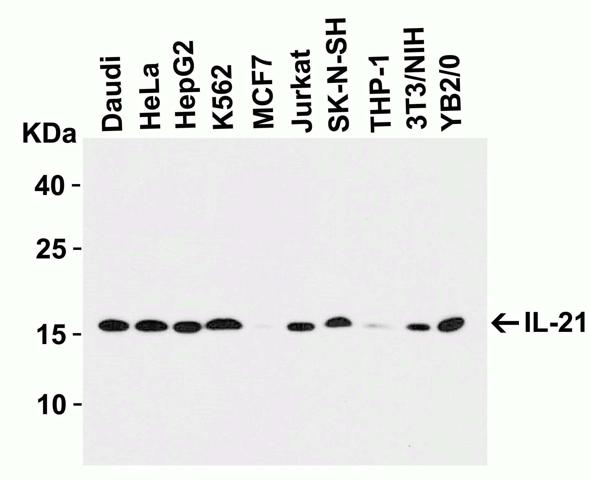 Western blot - Anti-IL-21 antibody (ab5978)