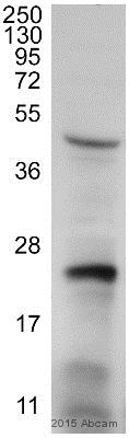 Western blot - Anti-RAB7 antibody [Rab7-117] - Late Endosome Marker (ab50533)