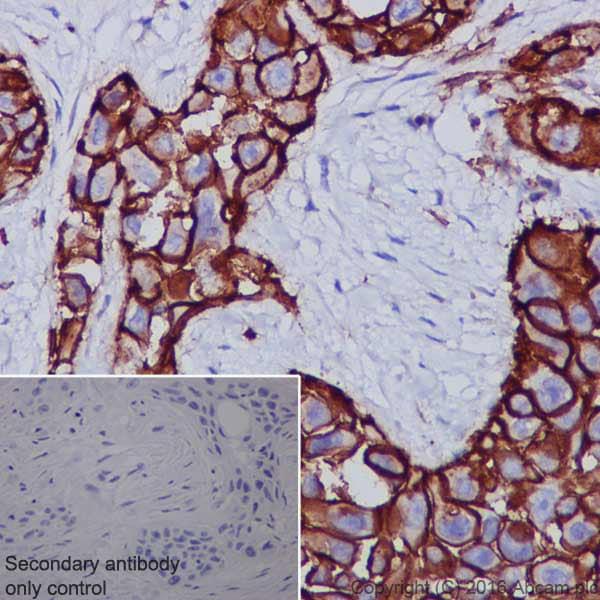 Immunohistochemistry (Formalin/PFA-fixed paraffin-embedded sections) - Anti-CD44 antibody [EPR1013Y] (ab51037)