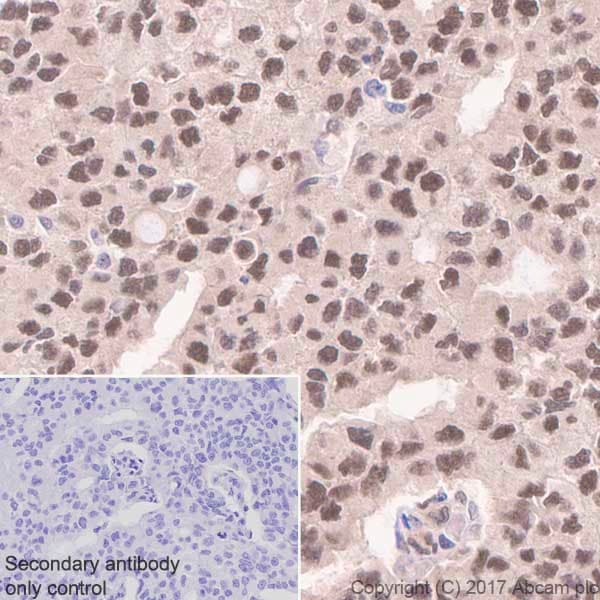 Immunohistochemistry (Formalin/PFA-fixed paraffin-embedded sections) - Anti-DYNLL1/PIN antibody [EP1660Y] (ab51603)
