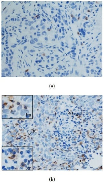 Immunohistochemistry (Formalin/PFA-fixed paraffin-embedded sections) - Anti-PD1 antibody [NAT105] (ab52587)