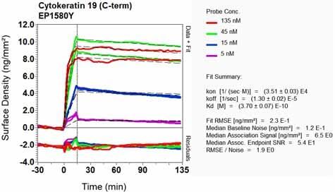 Other - Anti-Cytokeratin 19 antibody [EP1580Y] - Cytoskeleton Marker (ab52625)